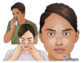 Nasal Cancer - Health Information Your Doctor Trusts